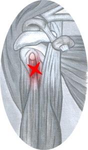 Olkapään limapussin tulehdus sairasloma